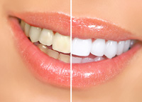 teeth whitening- before and after